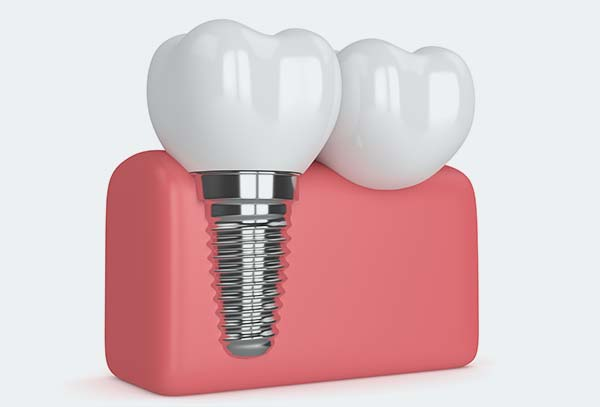 dental-implant-cabramatta