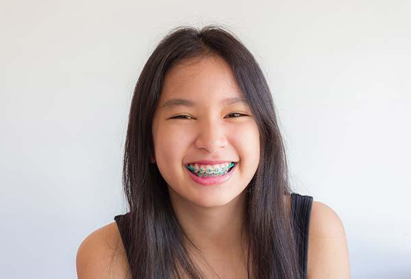 orthodontics-cabramatta