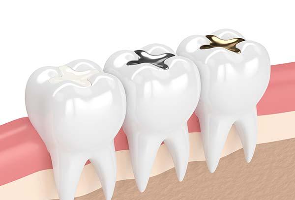tooth-filling-cabramatta