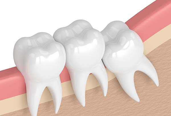 wisdom-teeth-removal-cabramatta